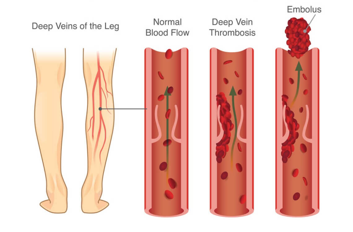 Deep vein thrombosis treatment in hyderabad