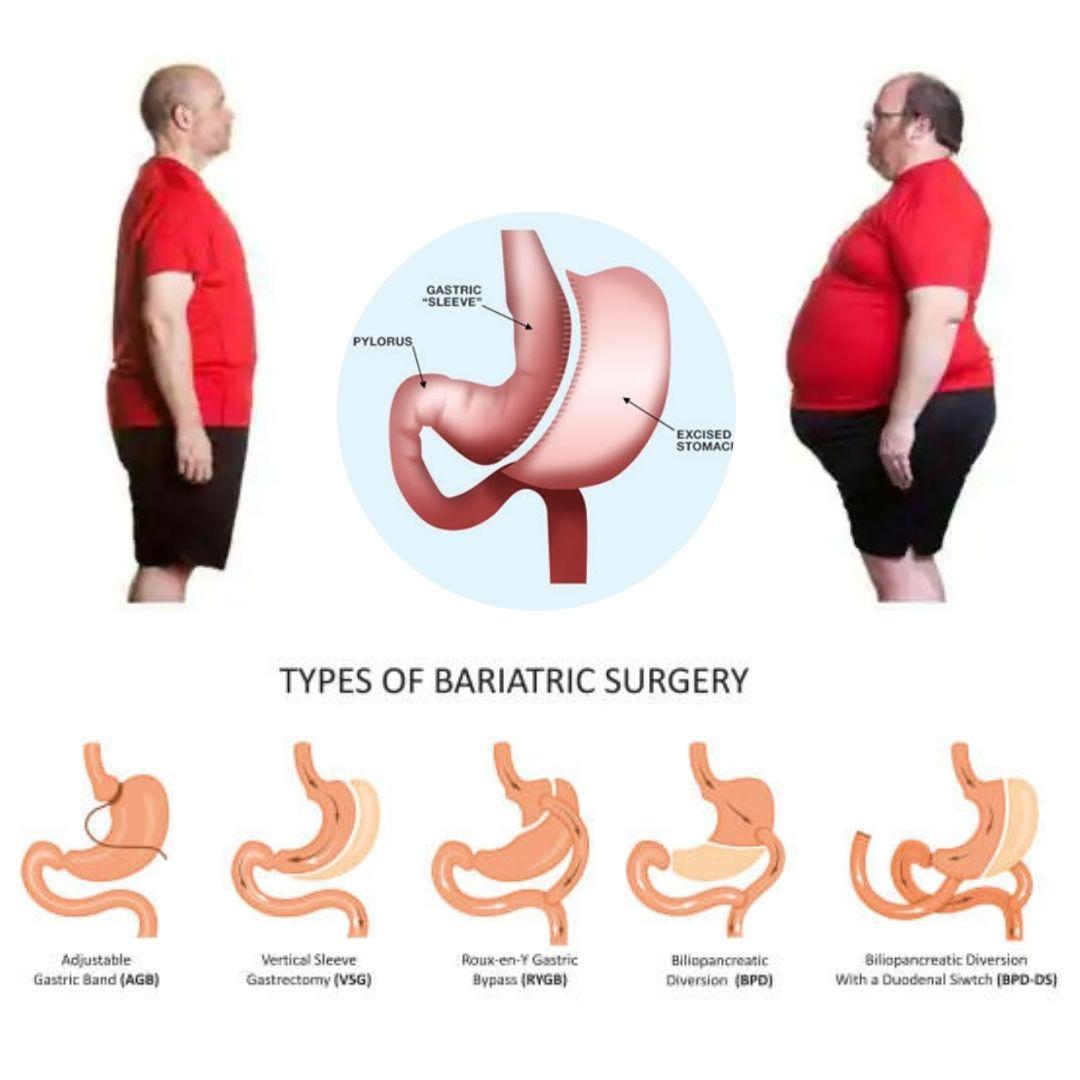 bariatric surgery Karankot        , bariatric hospital near me, bariatric surgery surgery cost Karankot