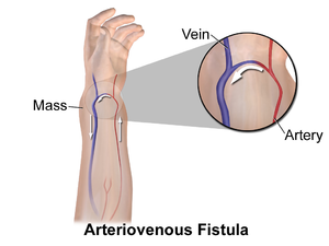 Arteriovenous Fistula For Ckd Patients For Dialysis hyderabad