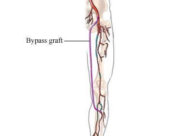 Femoral Popliteal Bypass treatment in hyderabad