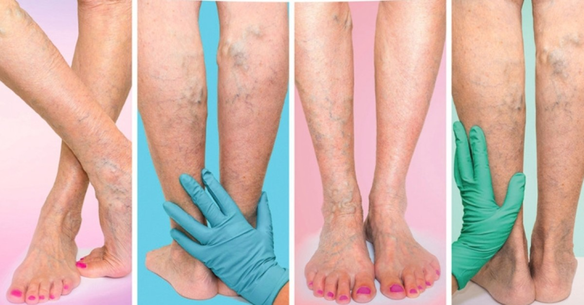 varicose veins treatment in Srikakulam